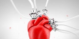 Сохранить сердце и вернуть к жизни: успехи челябинских кардиологов