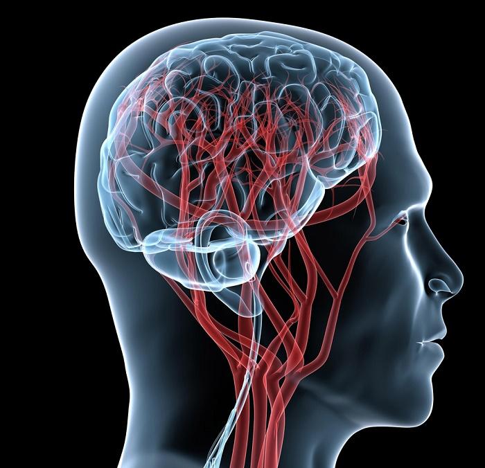 Кислородное голодание сосудов головного мозга
