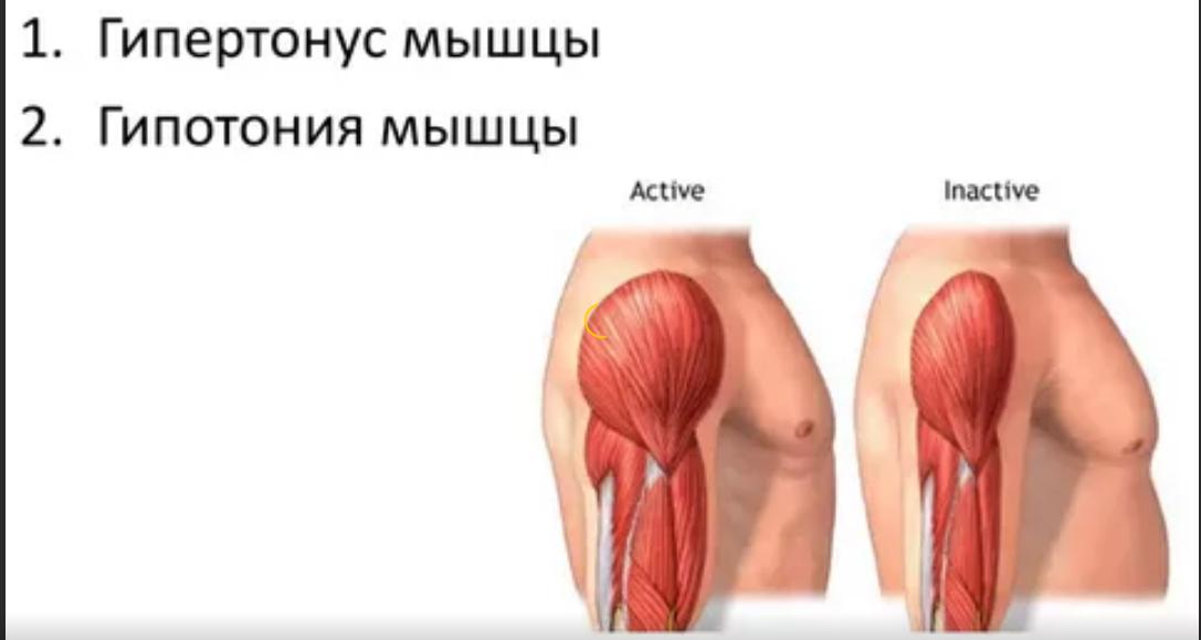 пониженный тонус мышц