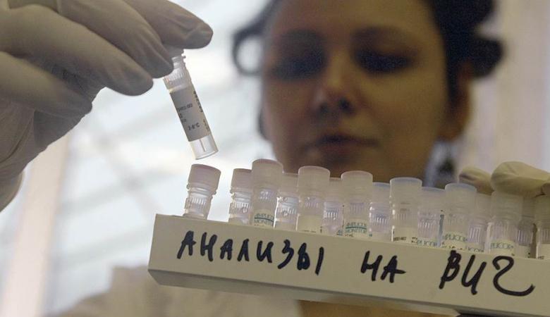 анализы на ВИЧ