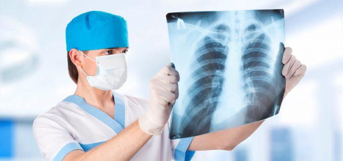 малоинвазивные операции для пациентов с туберкулезом